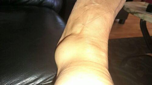 forstuvning af fod